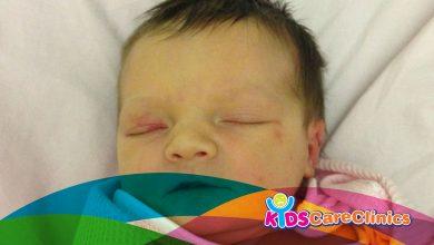Photo of صفراء حديثى الولادة